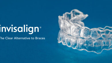 Photo of Do's And Don'ts of Invisalign